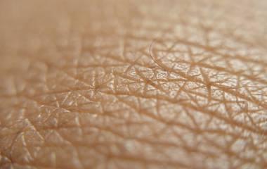 Spelet Frågor om huden